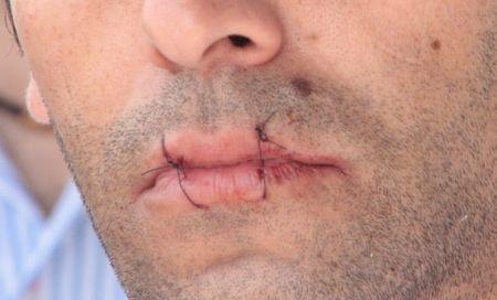 Один из участников протеста в Ереване зашил себе рот