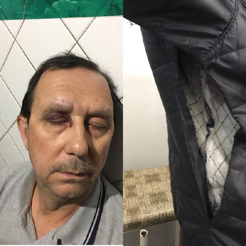 Поступая по совести, Олег получил травмы