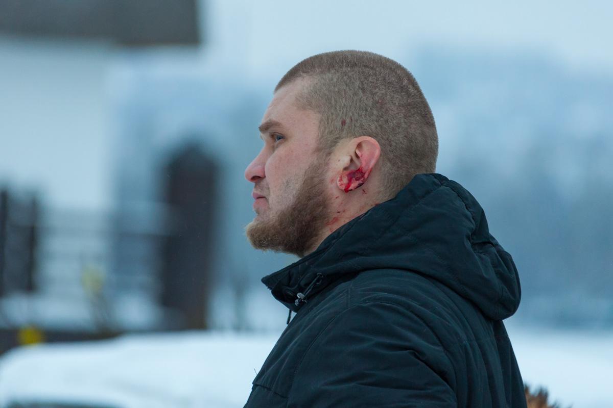 Помимо этого, в ходе конфликта с охранником прораб получил рваную рану уха